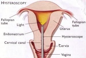 Hysteroscopy for fertility